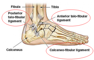 Ankle-sprains_physiotherapy