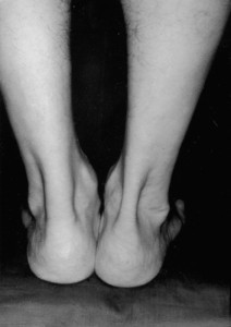 tendonachilles